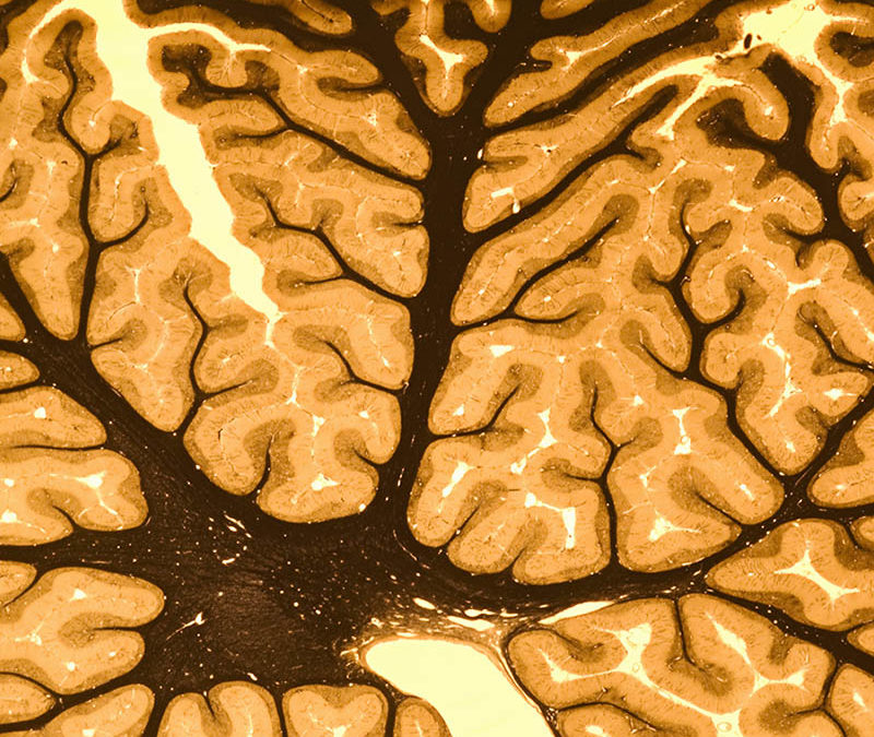 Some Neuroscience of Critical Thinking Education